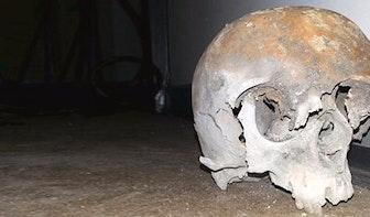 UMC implanteert succesvol kunststof 3D-schedel